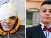 """الاحتلال يسرق نور عين الطفل """"بشار عليان"""""""