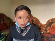 كيف يعيش طفل بنصف وجه في غزة؟