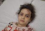 العدوان على غزّة.. آثار تطحن نفسية 91% من أطفالنا